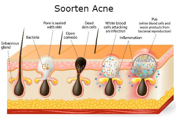 acne soorten voeding darmflora