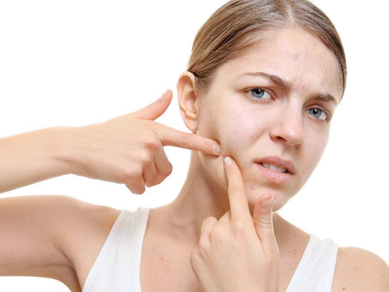 acne huidverzorging probiotica