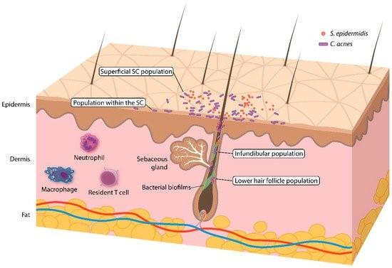 Acne en microbioom